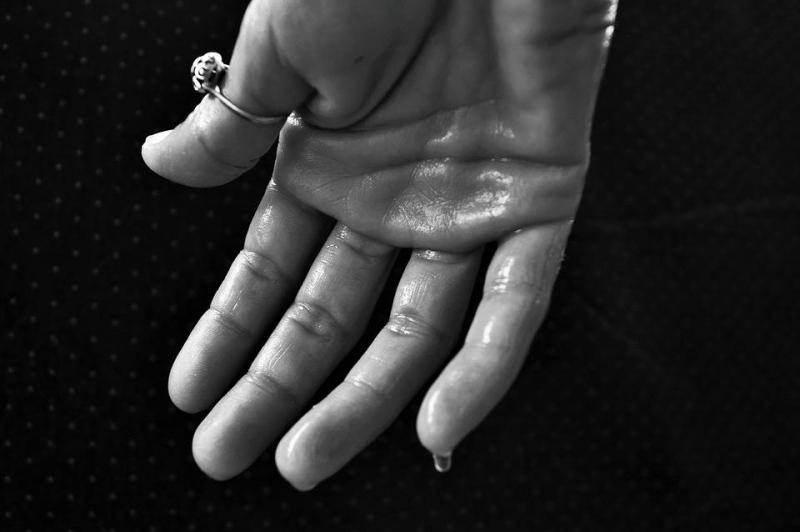 手心出汗多有红点奇痒是什么原因手心出汗多有红点奇痒怎么办