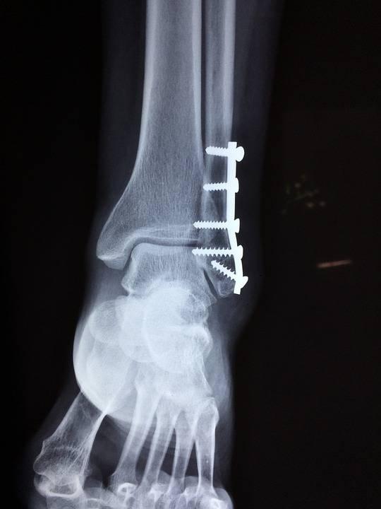 骨折活血化瘀食疗方法骨折以后吃什么食物好